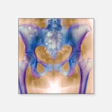 "Healthy hip bones, X-ray Square Sticker 3"" x 3"""