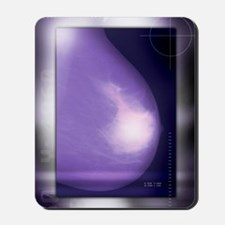 Healthy breast, X-ray Mousepad