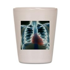 Healthy heart and lungs, X-ray Shot Glass