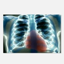 Healthy heart and lungs,  Postcards (Package of 8)