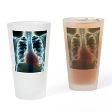 Healthy heart and lungs, X-ray Drinking Glass