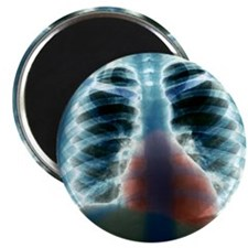 Healthy heart and lungs, X-ray Magnet