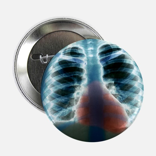 "Healthy heart and lungs, X-ray 2.25"" Button"