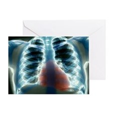 Healthy heart and lungs, X-ray Greeting Card