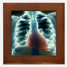 Healthy heart and lungs, X-ray Framed Tile
