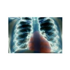 Healthy heart and lungs, X-ray Rectangle Magnet