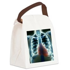 Healthy heart and lungs, X-ray Canvas Lunch Bag