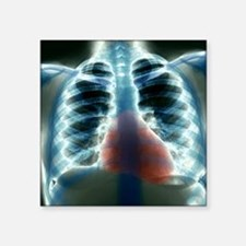 """Healthy heart and lungs, X- Square Sticker 3"""" x 3"""""""