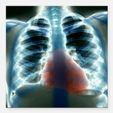 """Healthy heart and lungs, Square Car Magnet 3"""" x 3"""""""