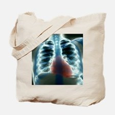 Healthy heart and lungs, X-ray Tote Bag
