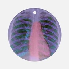 Heart, chest X-ray Round Ornament