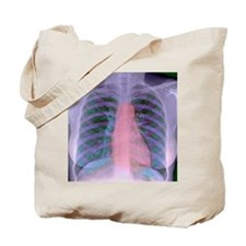Heart, chest X-ray Tote Bag