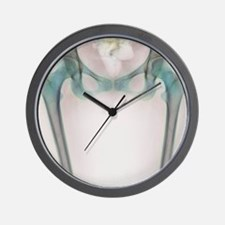 Hip bones, X-ray Wall Clock