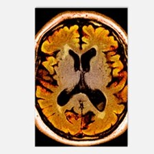Alcoholic dementia, MRI s Postcards (Package of 8)