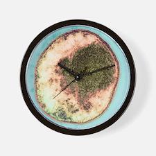 Chlamydia bacterium, TEM Wall Clock