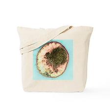 Chlamydia bacterium, TEM Tote Bag