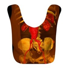 Aortic aneurysm, 3-D CT scan Bib