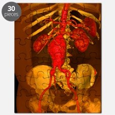 Aortic aneurysm, 3-D CT scan Puzzle