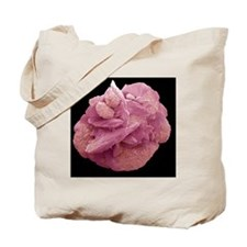 Bladder stone, SEM Tote Bag