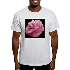 Bladder stone, SEM T-Shirt