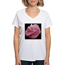 Bladder stone, SEM Shirt