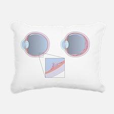 Detached retina, artwork Rectangular Canvas Pillow