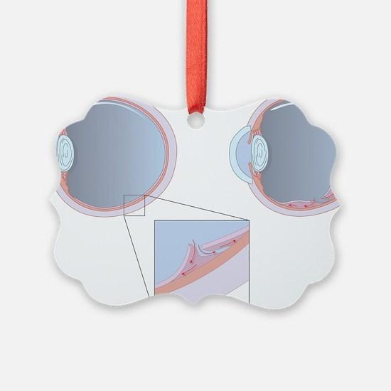 Detached retina, artwork Ornament