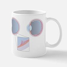 Detached retina, artwork Mug