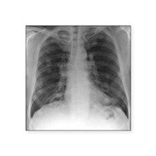 "Lung cancer, X-ray Square Sticker 3"" x 3"""