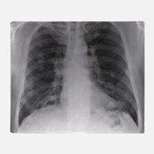 Lung cancer, X-ray Throw Blanket