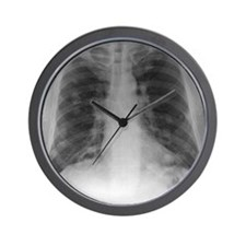 Lung cancer, X-ray Wall Clock