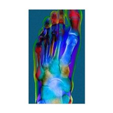 Normal foot, X-ray Decal