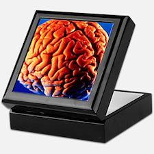 Human brain Keepsake Box