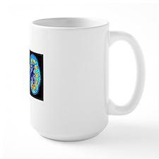 Human kidneys Mug
