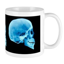 Human skull development Mug