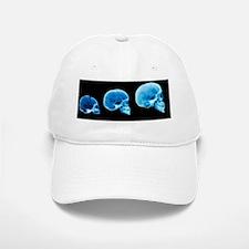 Human skull development Baseball Baseball Cap