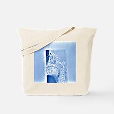 Human skull, X-ray Tote Bag