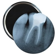 X-ray of human teeth. There is a leaning to Magnet