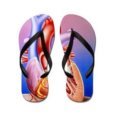 Illustration of a partly-dissected norm Flip Flops