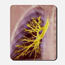 Lung bronchioles, X-ray Mousepad