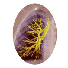 Lung bronchioles, X-ray Oval Ornament