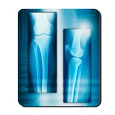 Knee joint from front and side, X-ray Mousepad