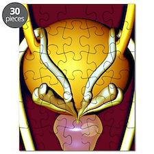 Prostate gland Puzzle