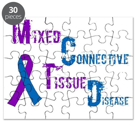 Mixed Connective Tissue Disease Puzzle