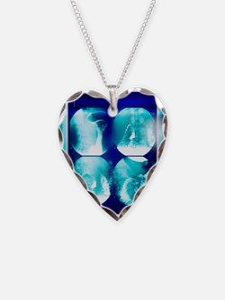 Small intestine, barium X-ray Necklace