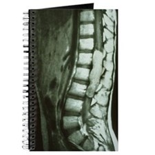 Spinal cord cancer MRI Journal