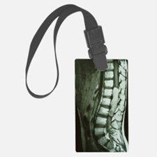 Spinal cord cancer MRI Luggage Tag