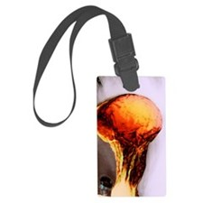 Stomach, X-ray Luggage Tag