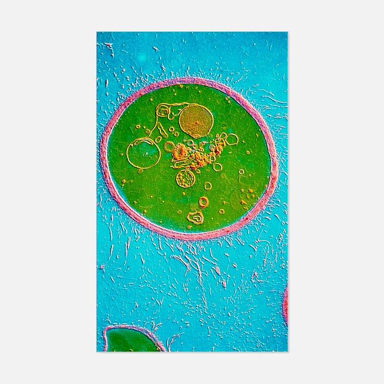 TEM of Cryptococcus neoformans Decal