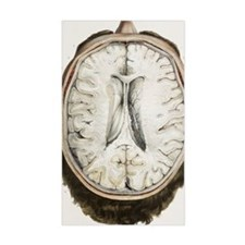 Brain ventricles, 1844 artwork Decal